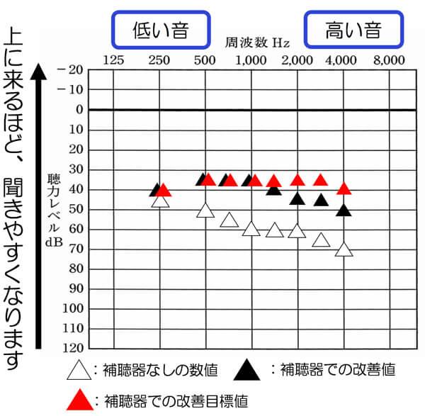 仮に補聴器での改善目標値と現在値を比較すると、上記のような状態だった場合、1000Hzくらいまでは、補えているので、高い音に関して、少し足りておらず、もう少しこの部分を改善してみよう。とした場合にchが多いと、その部分だけ、あげることが容易になります。