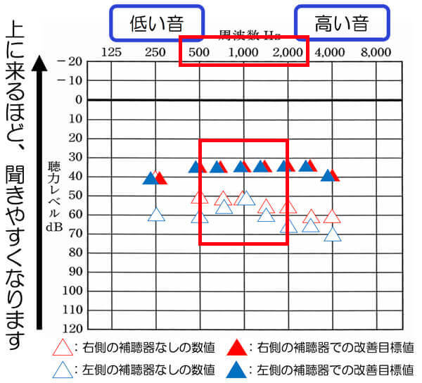 両耳ともこのあたりの改善については、目標値まで、改善できると、聞きにくさを改善しやすくなる傾向があります。