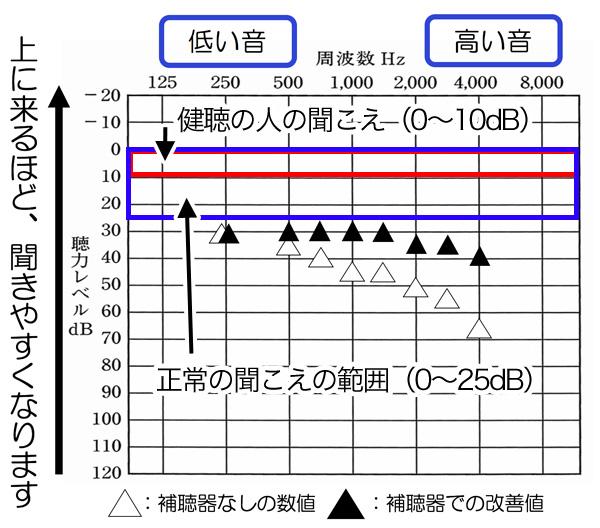 高い音が聞こえにくい場合、概ね、この辺りまで改善しますが、高い音(2000Hzより先)は、聴力によって、大きく変化します。