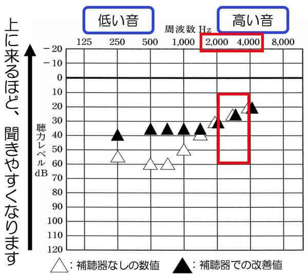 こちらの図は、補聴器を使用した状態を可視化した図です。上記のように、なるべく補聴器なしの状態と補聴器ありの状態で、高域が下がらないようにできると、聞きにくさの改善は、しやすくなります。