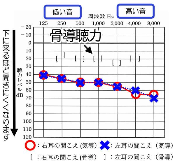 中には、先ほどの記号の位置が異なる位置で出てくることがあります。