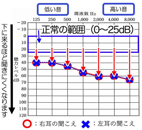 聴力の正常の範囲は、0〜25dBまでになります。それよりも、聴力が落ちると、落ちるだけ、聞きにくさが出てきます。