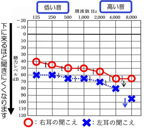 ○と×、そして、[ ]が同じような位置にきている場合は、感音性難聴になります。
