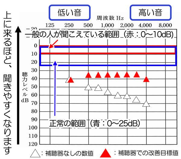 正常の範囲は、25dBまでなのですが、補聴器は、そこに一歩及ばない、35dB、30dBくらいが、改善の限度です。なお、聴力は、低下すると低下するほど、聞こえを改善できるレベルは、下がりますので、こちらの内容は、あくまでも、軽度難聴、中東ど難聴くらいの方が当てはまる内容になります。