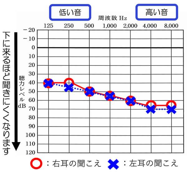基本的に耳の状態は、音の高さ別にどのくらい聞こえているのか。を調べます。色々な音があるためですね。