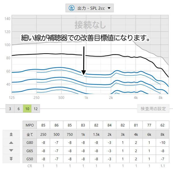 補聴器のソフトには、今現在、どのくらい改善できると良いのかの数値が出てきますので、それも見ながら、状況を把握できるといいですね。