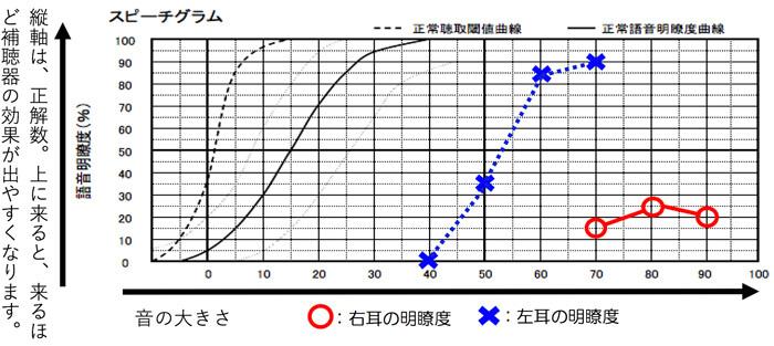 測定した際は、このような図に表されます。補聴器の効果は、最良値が、50%以上であれば、感じるようになり、上にいくと、上にいくほど、改善度は、高くなります。逆に下にいくと、いくほど、補聴器で聞こえを改善したとしても、音だけしか感じず、話の内容は、わかりづらいままになりがちです。