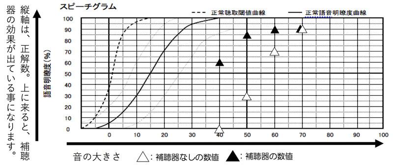 補聴器をつけた状態での言葉の聞こえの測定。概ね、良いところまで改善できています。補聴器なしでの最良値(この場合は、90%)が、補聴器ありでの70dB、60dB、50dBで-10%以内の数値(この場合は80%以上)なら、概ね、良い状態になります。