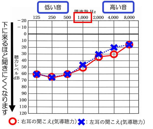 低い音を中心に聞こえにくい耳は、1000Hzが40dBより下の場合は、全体的に音声が聞きにくくなりやすく、1000hzが30dBくらいですと、男性の声を中心として、聞きにくい傾向があります。