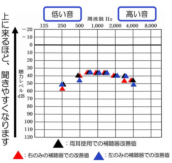 なるべく音声に影響しやすい500〜2000hzは、改善するようにし、かつ、響きを少々、感じやすいため、2000Hzから高い音は、少し抑えめに。そして、左右のバランスを整えるように行うことで、数値的には、ばらつきがあるように見えますが、感覚的には、右がよく聞こえる、左が聞こえないなどは、ないようにしました。