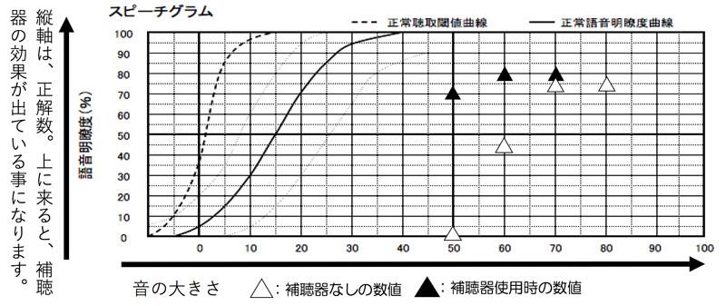 調整をやり直し、再度、改善した後に測定した結果。全体的に改善できて、良い状態にできました。補聴器なしの状態での数値の最良値に±10% 範囲(この場合は、70〜50dBまで、65(75-10)%以上になるように調整できると、概ね、良い状態になります。