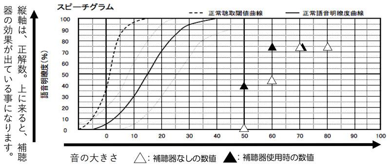70dB:少し声の大きい方の聞こえ。60dB:普通の声の大きさの聞こえ。50dB:ちょっと離れたところからの声の聞こえ。になります。バランスが崩れたのが要因か、主に50dBの部分が低くなっており、もう少しできるなら、改善したいところです。