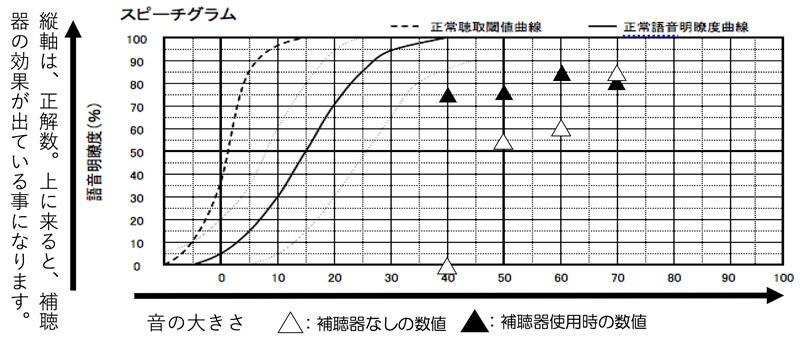 補聴器には、言葉の聞こえを調べるものもあります。K・Iさんの場合は、50dB(少し小さい声の大きさ)60dB(普通くらいの声の音量)70dB(少々声が大きい方の音量)で、補聴器なしの最良値(85%)の-10%の範囲で、聞こえていると良い状態になります。※簡単に言いますと75%以上で聞こえていれば、良い状態です