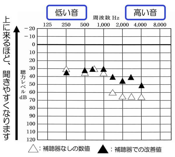 補聴器使用時の状態は、このような状態でした。こちらのご説明は、のちに致します。