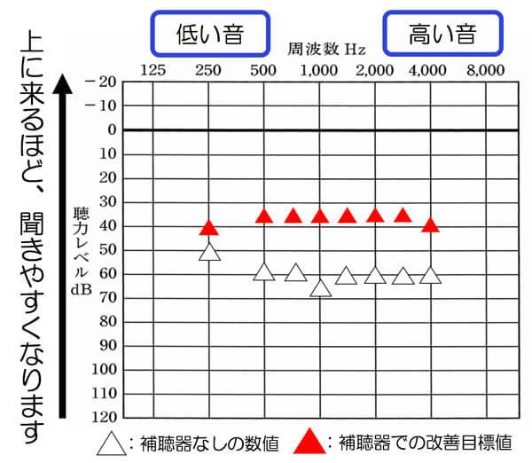 補聴器には、耳に使用した状態を可視化できる測定がいくつかあります。こちらは、その一つです。