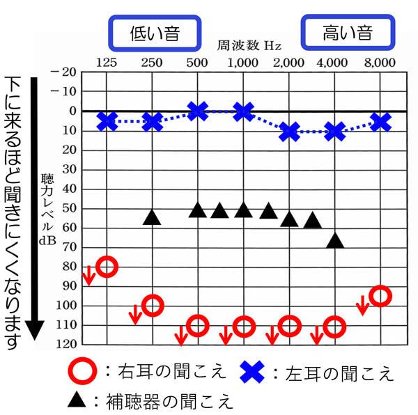 このくらいの聴力の方で、改善できるのは、▲くらいです。なお、この▲ですが、聴力の割には、改善度は、かなり良い方になります。