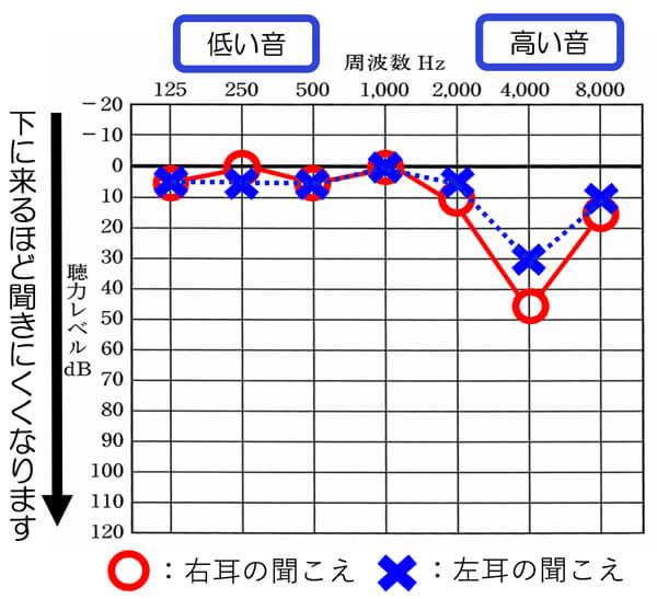 騒音性難聴の場合、一部分がV字型のように低下する事が多いです。