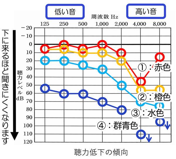 騒音性難聴の聴力低下の傾向。進行すると①、②、③、④、というように進んでいく傾向があります。