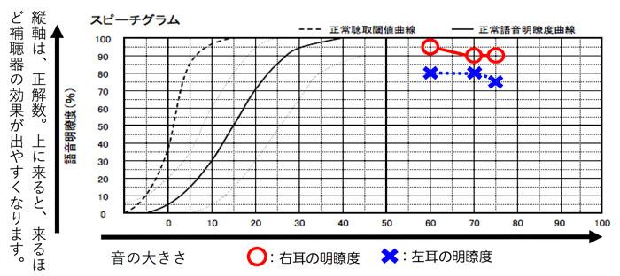 耳には、音声を大きく効かせた際にどのくらい言葉が理解できるのか。を調べる測定があります。語音明瞭度測定と言います。一部の方は、音を大きく入れても音声が理解できない方もいます。