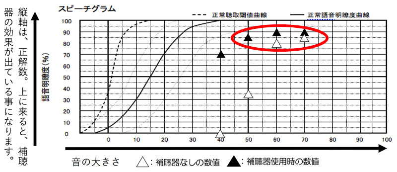 補聴器には、言葉の聞こえを調べる測定もあります。その場合、声の大きさで、多い70dB、60dB、50dBが全体的に改善できていると良い状態です。この部分は、改善しやすくしています。