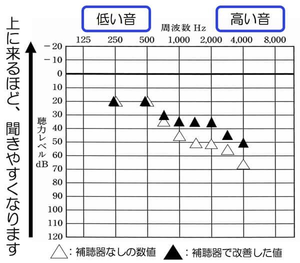 補聴器の聞こえの効果は、こちらの通り、高域は、下げているので、少し低いが、意外にもそれ以外は、ちゃんと補え、効果は、出ている状態になりました。