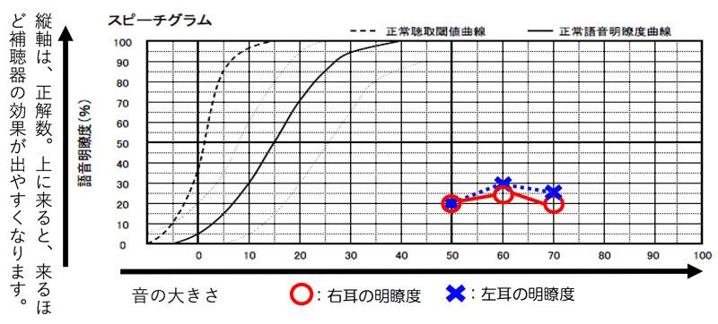 こちらが明瞭度を調べた図です。語音明瞭度の場合、一番良い数値、最良値と言いますが、その部分で、そのかたの耳の状況を把握します。こちらの場合ですと、右耳は、25%が最良値で左耳は、30%が最良値ですね。