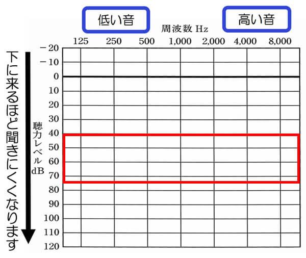テレアンプⅢの対象となる聴力、補える聴力は、大体、70〜80dBくらいまでになります。これよりも、難聴のレベルが高い場合は、聞きづらくなる傾向が出ます。