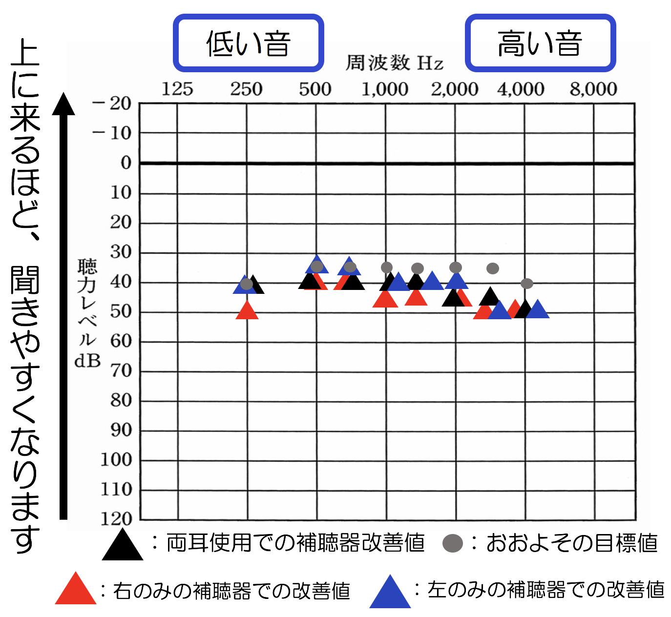 補聴器の効果測定(音場閾値測定)の結果。それぞれマークにより、意味が変化します。左右とも、目標となる聞こえの部分は、灰色の●のマークです。ですが、全体的に少し足りず、かつ、特に右側が非常に低いのが気になるところですね。