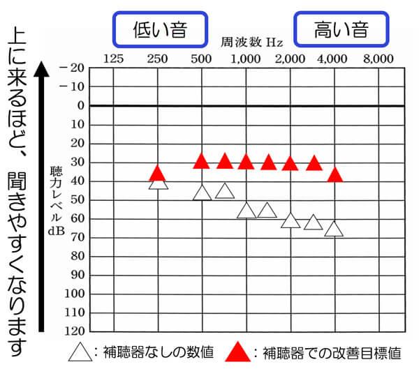 聴力が比較的、軽い方だと、このくらいまで改善できるケースがあります。もちろん、こちらも補聴器の調整画面上での改善目標値まで、改善したら、このくらいまで、改善された、という状態になります。