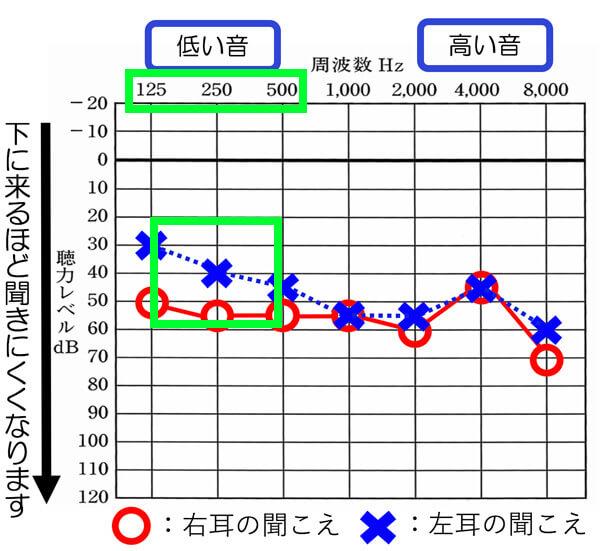 K・Fさんの聴力を見てみると、少し低域の聞こえが良いです。低域の聞こえが良い方(125〜500GHzが60dB以内)の場合は、補聴器を使うと、自分の声が自分の内側にこもって、大きく聞こえたり、低く響いて聞こえたりします。その不快な感覚を軽減するためにRIC補聴器を選びました。RIC補聴器は、今現在、その不快感を一番、軽減しやすい補聴器になります。