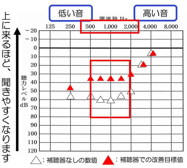 あくまでも傾向ですが、500〜2000Hzのあたりが改善されると、その分、音声の聞き取りも改善しやすくなる傾向があります。