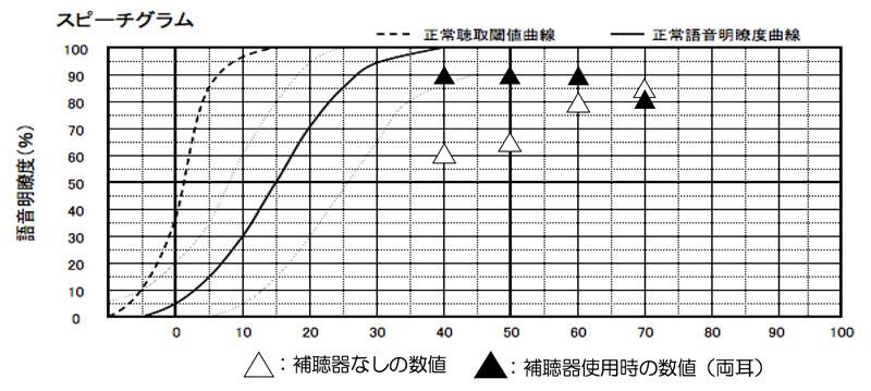 補聴器には、補聴器を使った状態での言葉の測定があります(音場語音明瞭度測定)。その結果がこちら。主に使われる音量である、70dB(ちょっと声が大きい方の大きさ)、60dB(普通の声の大きさ)、50dB(ちょっと声の小さい方の声の大きさ)で、補聴器なしの状態より、よくすることができました。