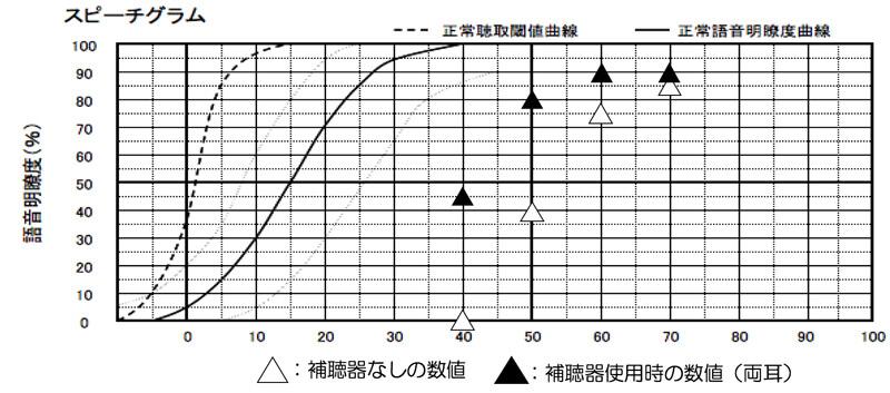 あくまでも傾向にはなりますが、音場閾値測定で、35dBくらいまで改善できていると、70〜50dBまでの範囲で、改善がしやすくなります。補聴器の調整画面上で、目指せると良い部分を目指した結果、このようになる事が多いですね。