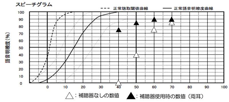 音の大きさは、横軸です。そこの50dB、60dB、70dBは、良く使われる声の大きさですので、効果を調べるために測定される事が多いです。