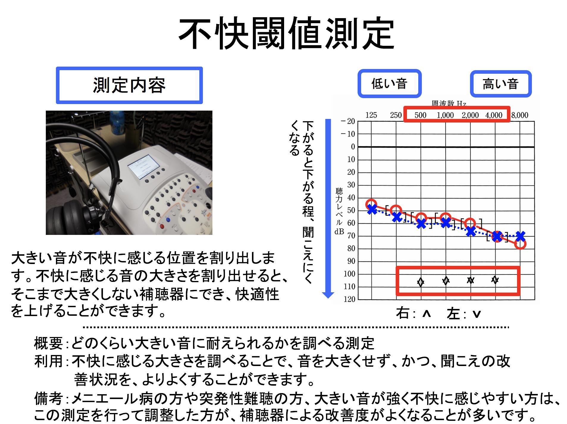 補聴器の世界には、大きな音の不快レベルを調べる測定があります。こちらで、より改善していくために、調べて、改善に役立てていきます。