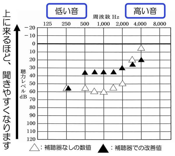 500Hzだけ、少し上昇。特に低音に関して、元々聞きづらいため、そのようなケースは、500Hzあたりは、改善目標値まで改善できると、改善度が上がりやすい傾向があります。