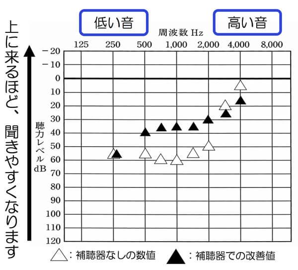 こちらは、音場閾値測定での結果です。ちょっと高い音が元の聞こえより、低下していますね。そんな事も、実は、調べる事で、把握できます。