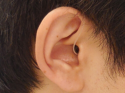 補聴器の形状としては、小さく、目立ちにくいものが多いです。