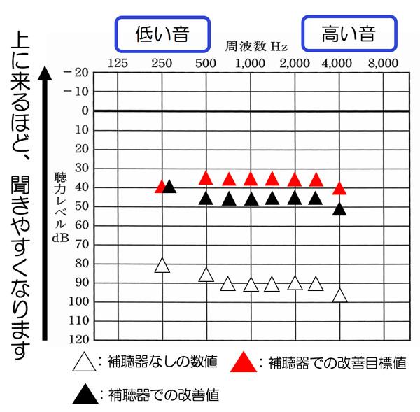 おおよその改善値(音場閾値測定)普通の声も少し小さい声も聞きやすくするには、だいたい35dBくらいまで必要ですが、聴力低下が大きくなると、そこまで改善させる事がかなり難しくなります。