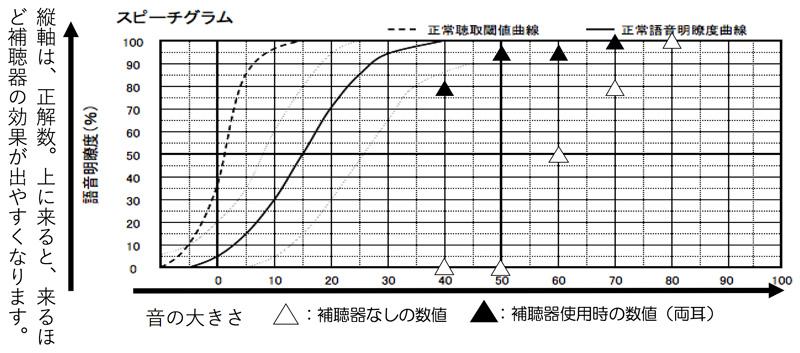 補聴器をつけたまま、音声がどのくらい聞こえるのかを調べる測定があるのですが、その図は、こちらです。全体的に、聞こえると良い部分で、音声が理解できるように改善しています。