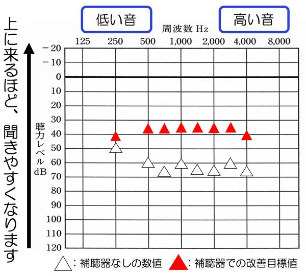 あくまでも傾向ですが、平均的に改善できている人が、良い傾向あり。特に高い音がしっかり入っている人程、数値的には、良い傾向があります。※1000Hzを含む、その先がですね。