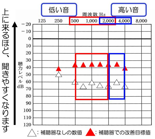 赤の500〜2000Hzは、主に音声に関係しやすく、その部分が目標まできていると、改善しやすくなります。2000〜4000Hzあたりは、チャイムや周囲の音の気づきに影響しやすく、それが目標まできていると、周囲の状況もかなりわかりやすくなります。