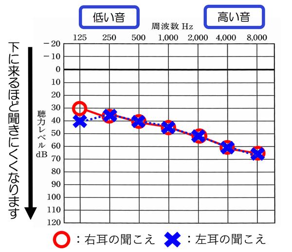 平均聴力40dBの例。ちょっと50dBより。