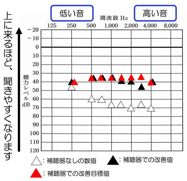 補聴器の場合、音の高さ(周波数)と音の大きさの軸がありますが、それぞれの音が、どうなっているのか、それが見やすいのが、この測定の特徴です。実際には、この測定には、この測定の欠点もありますので、これだけで判断することはないのですが、どこが足りていて、どこが足りていないのか。の判断は、かなりしやすいのがポイントですね。