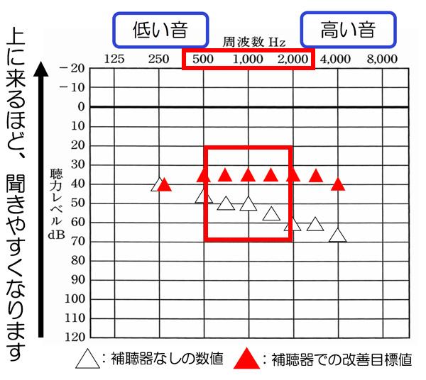 音声で関係しやすいのは、500〜2000Hzあたりです。その部分が、だいたい35dBくらいまで改善していると、少し小さい声の方の聞こえについては、改善しやすくなる傾向があります。