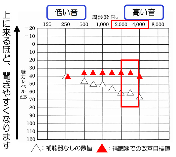 アラームや高い音に関しては、だいたいこの辺りが関係します。典型的な高い音には、体温計がありますが、あちらの場合は、4000Hzが45dBくらいまで聞こえていると、聞こえやすくなる傾向があります。