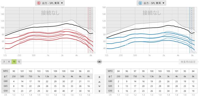 補聴器の調整画面。補聴器の調整画面には、今現在、どのくらい改善しているのか、そして、どのくらい改善すると良いのかのデータが書かれています。